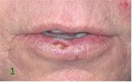 Plattenepithelkarzinom Lippe